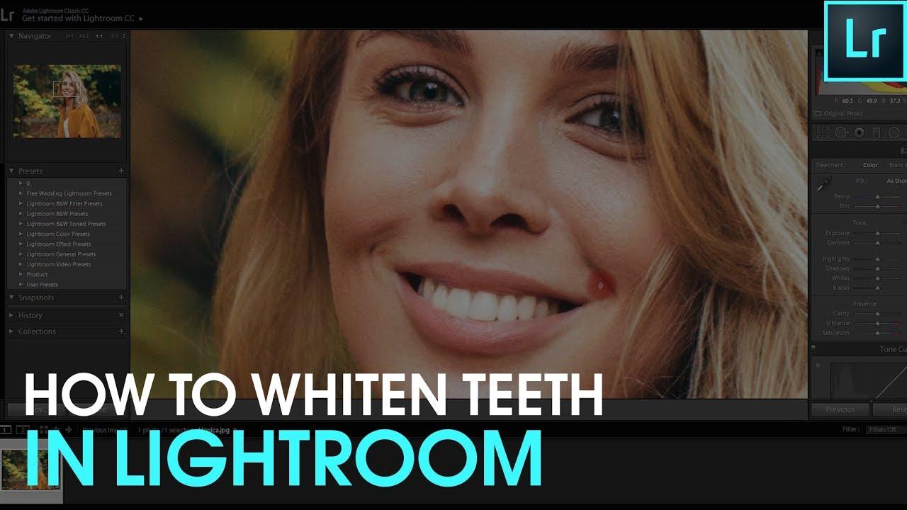 How To Whiten Teeth In Lightroom Youtube