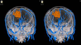 Falsiform Meningioma - 3D Virtual Tour | UCLA Neurosurgery