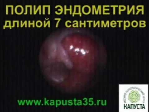 Полип эндометрия - удаление, лечение, симптомы железистого