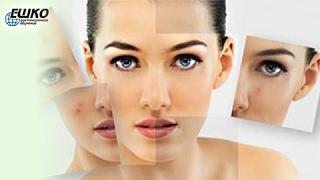 Уход за кожей при себорее и угревой сыпи