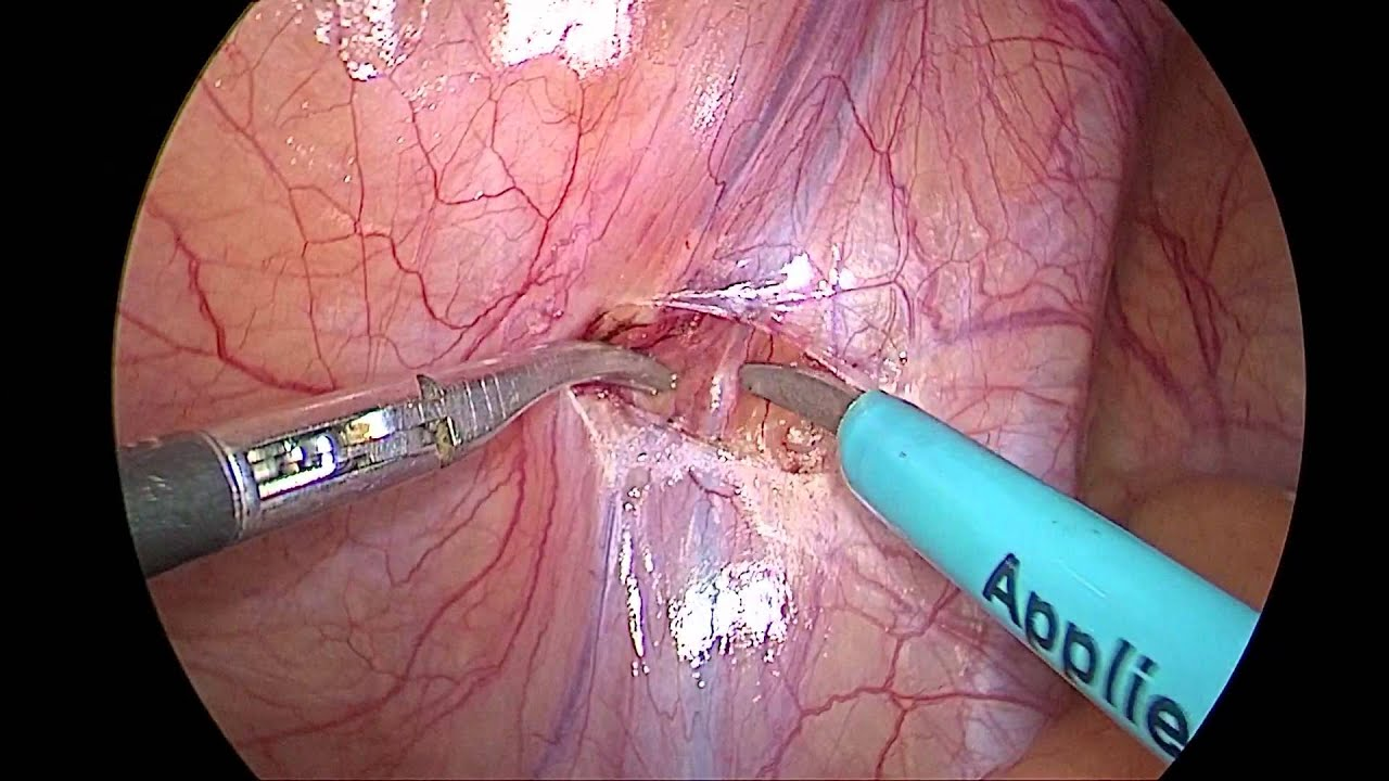 Laparoscopic varicocelectomy - YouTube