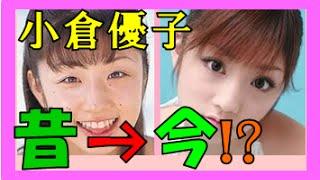 小倉優子さん 【整形疑惑!?】 昔の画像には「ほくろ」がたくさんあっ...
