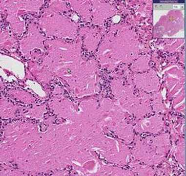 Histopathology Lung --Alveolar proteinosis