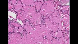 Histopathology Lung --Alveolar proteinosis