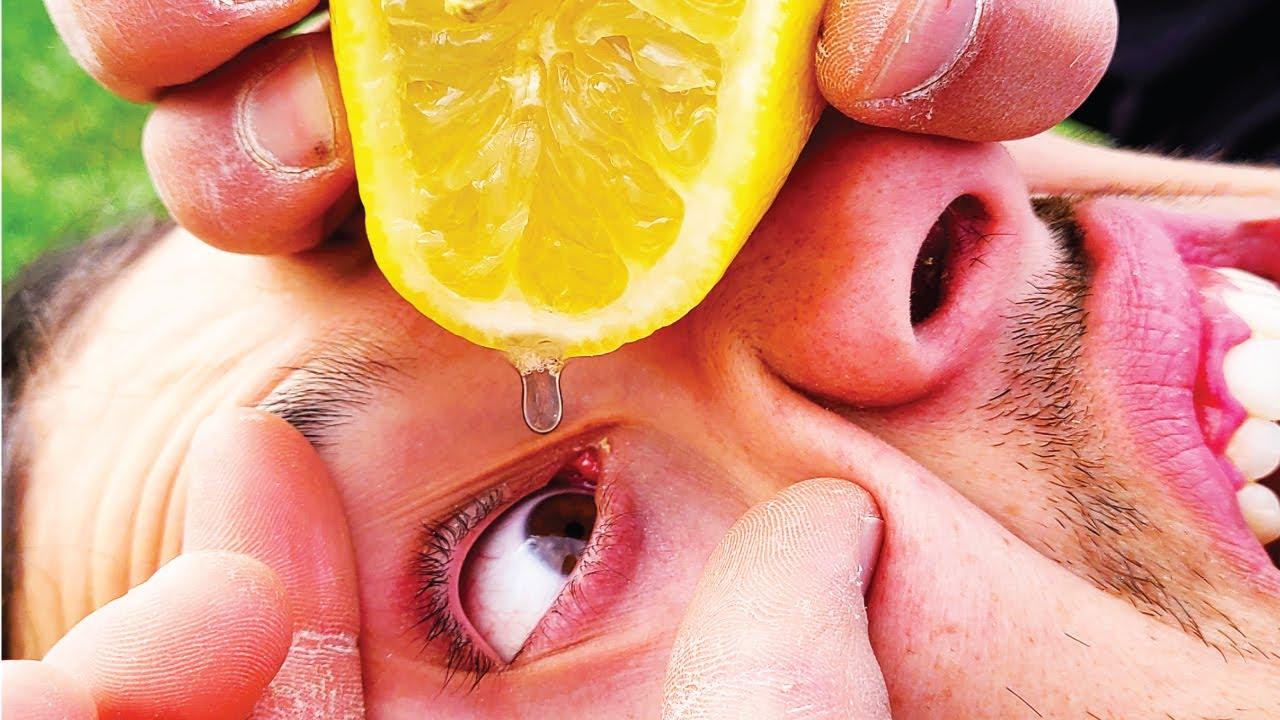 Squeezing LEMONS into our eyes!