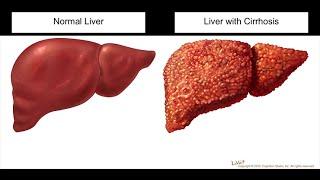 الطبيب : التليف الكبدى واسبابه - زراعة الكبد - لقاء خاص مع د/ عصام اللبان