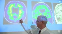 New definition of Alzheimer's changes how disease is researched