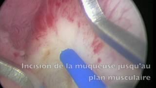 resection laser tumeur vessie