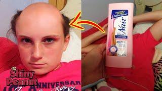 Dikira Sampo, Rambut Cewek Ini Botak Karena Memakai Penghilang Bulu