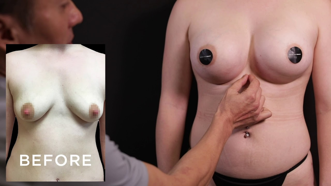 Breast Enhancement Cosmetic Surgery, Cost