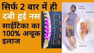साइटिका का 100% सफल इलाज!! Sciatica Herbal tip