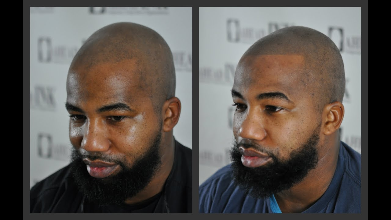 scalp micropigmentation african