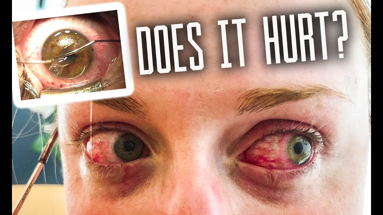 Getting Laser Eye Surgery - Does It Hurt?! My Full ...