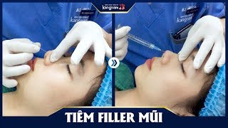 Tiêm filler mũi - Nâng mũi không cần phẫu thuật tại Kangnam