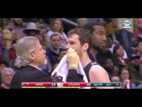 Al Horford elbow to Goran Dragic