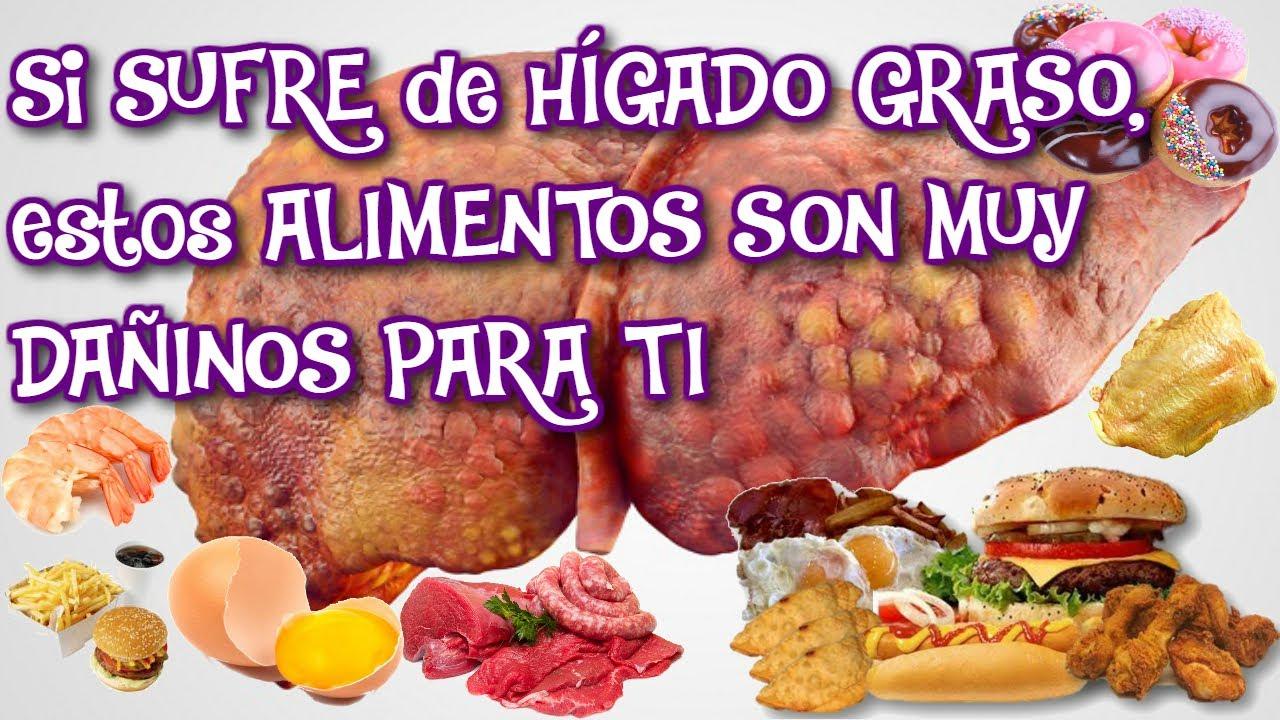 Alimentos que da an el h gado alimentos perjudiciales para el higado graso aprende a cuidarlo - Mejores alimentos para el higado ...