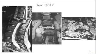 Séance d'interpretation Radiologie