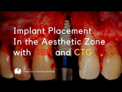 Implant Placement With Connective Tissue Graft  Gbr And Ridge Expansion