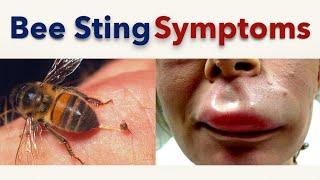 Bee Sting Symptoms