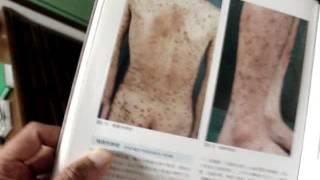 神戸・三宮トアロードクリニック 漢方内科・皮膚科・アレルギー科 2016年12月18日