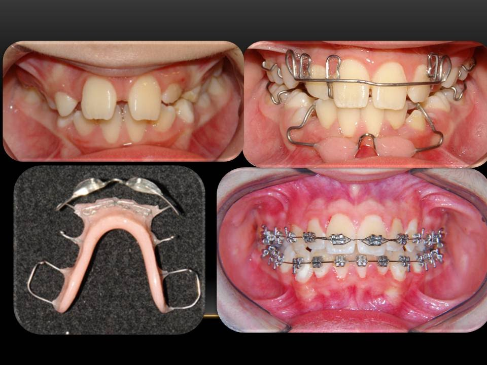 Removable Orthodontic Appliances: Orthodontist - YouTube