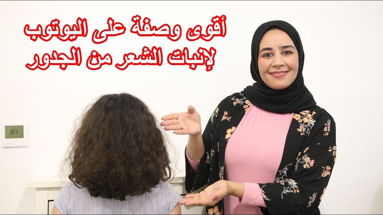معاناتي مع الصلع 🥺 وكيف أنبث شعري من جديد😍 النتيجة واو💃