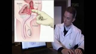prostata 40 grammi A prosztatitis második szakasza
