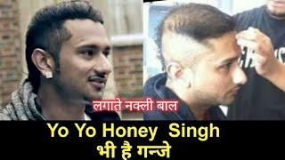 Case study | Yo Yo Honey Singh Hair | क्या हनी सिंह के बाल असली है?