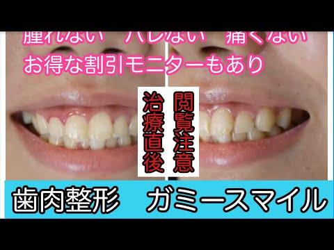 歯茎が見えすぎてしまうのが悩みで、写真を撮る時もいつも口を閉じて写っていました。