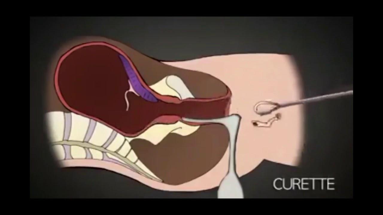 inclinic abortion procedure abortion methods - 1200×750
