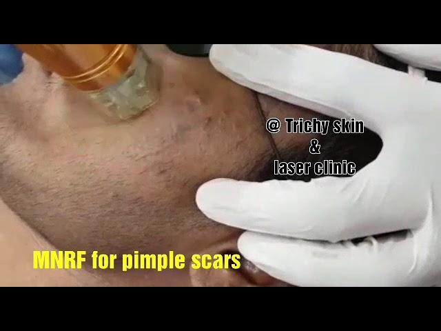 Microneedling RF , MNRF for acne scar