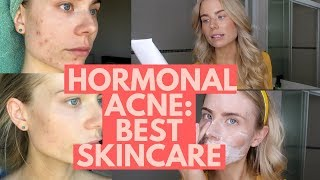 Hormonal Acne: Best Skincare for Reducing Inflammation