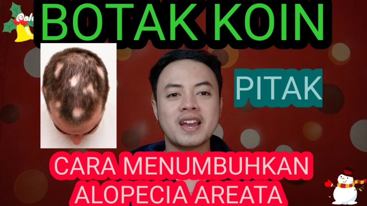 Download ALOPECIA AREATA - BOTAK KOIN - PITAK - CARA MENUMBUHKAN BOTAK KOIN - CARA MENUMBUHKAN KEBOTAKAN