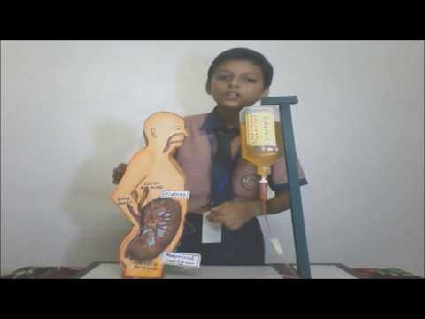Peritoneal Dialysis | Biology Science Model Exhibition Winner | Yatharth Bhardwaj | Emmanuel mission