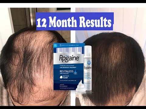 does-rogaine-really-work???-12-month-results-|-mens-rogaine-(5%-minoxidil)-hair-regrowth-treatment
