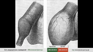 Обрезание при фимозе(, 2015-10-25T14:47:41.000Z)