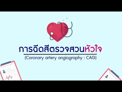 การฉีดสีตรวจสวนหัวใจ  (Coronary artery angiography : CAG)