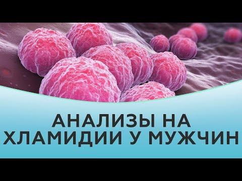 Анализы на хламидии у мужчин