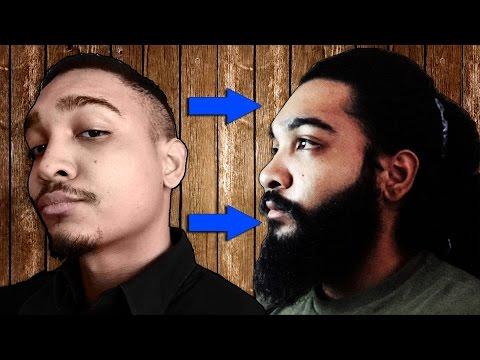 24-men-who-grew-fuller-beards-using-minoxidil