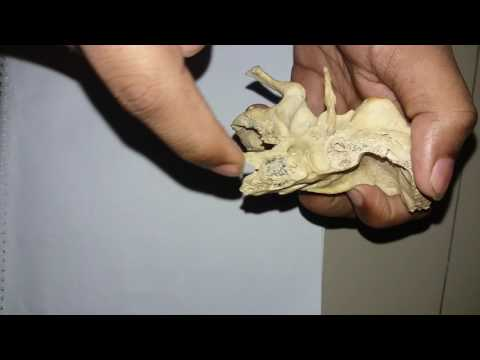 Temporal bone (Part-2)[Bangla tutorial]