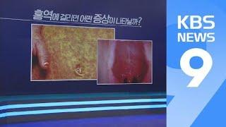 잇단 홍역 확진에 보건당국 '비상'…예방법은? / KBS뉴스(News)