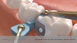Palodent® Plus EZ Coat System – Sectional Matrix System | Dentsply Sirona