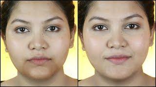 Hyper pigmentation , Freckles, Dark Spots,  Black Patches reduce Naturally