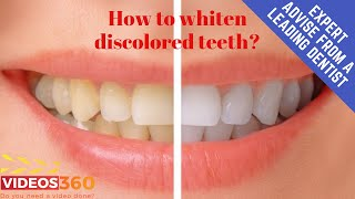 Now Trending - Worried about discolored teeth? – Different teeth whitening systems by Dr. Tim Schmidt