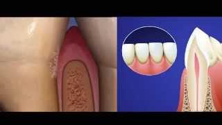 видео Отзывы о профессиональной чистке зубов по технологии «Air Flow»