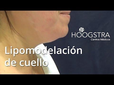 Lipomodelación de cuello (15152)