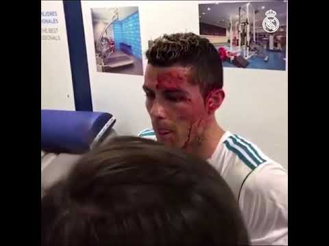 Ronaldon got wounded in eye & got treatment through his injuries after their recently match 2018