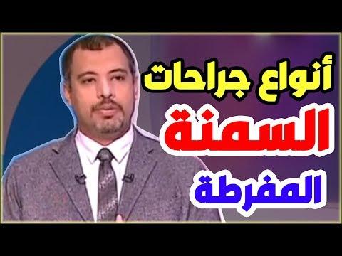 جراحات السمنة المفرطة فى مصر