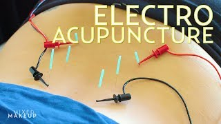 We Tried Electro Acupuncture in Los Angeles! | The SASS with Susan and Sharzad