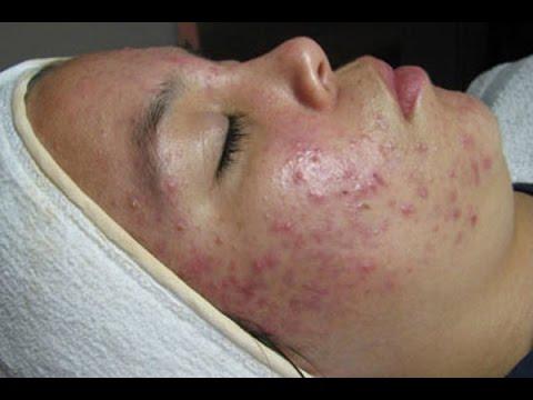 Серная мазь - старое средство для лечения кожных болезней